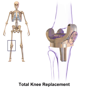 Joint replacement photo of knee surgery skeleton