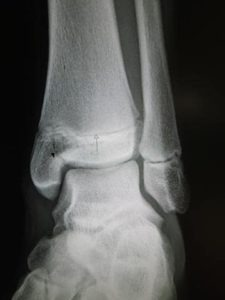 photo of a bone fracture