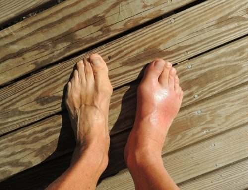 7 Common Foot and Ankle Injuries and Disorders